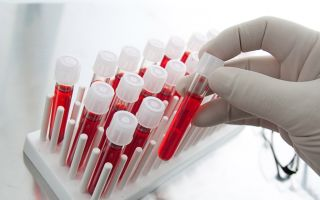 Діагностика гіпотиреозу з допомогою лабораторних досліджень