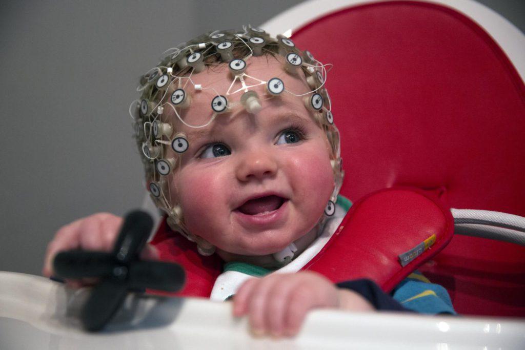 ЕЕГ головного мозку: що показує у дітей, що таке ЕЕГ голови у дитини, розшифровка енцефалограми