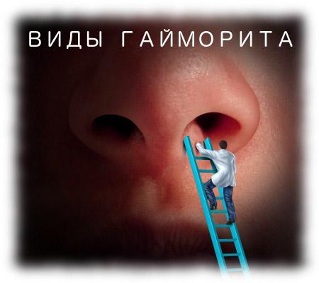 Ексудативний гайморит: лікування та форми хвороби