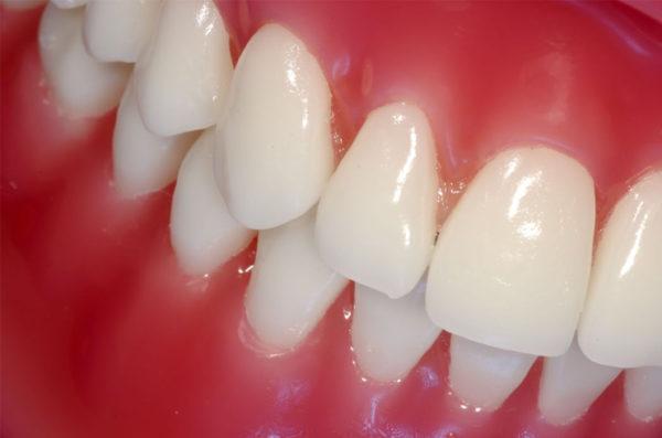 Хитаються зуби методи боротьби народними засобами