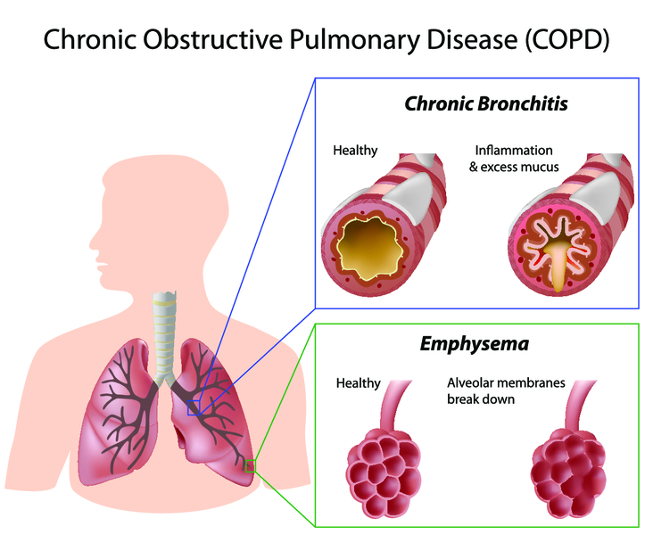Хронічна обструктивна хвороба легень (ХОЗЛ): причини, симптоми, лікування