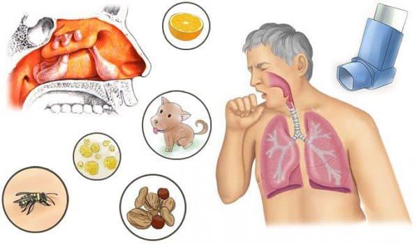 Особливості і способи лікування алергічного гаймориту