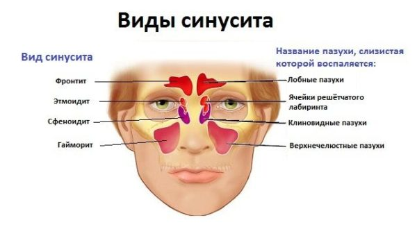 Пансинусит лікування гострої та хронічної форми