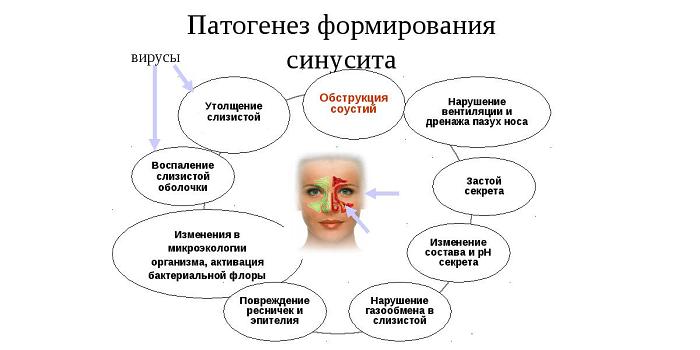 Визначення гиперпластического риніту у дорослих