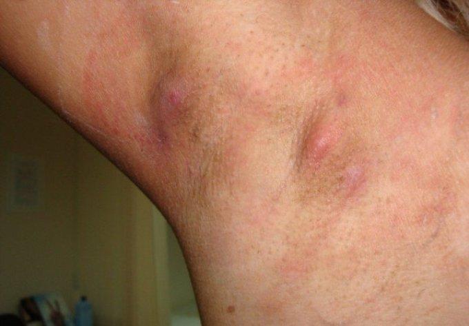 Гідраденіт, або «сучье вим'я». Лікування гидраденита народними і медикаментозними засобами