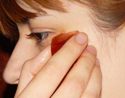 Лікування гемангіоми в домашніх умовах