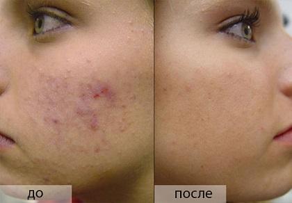 Маска-пілінг: ефект помітний на обличчі!