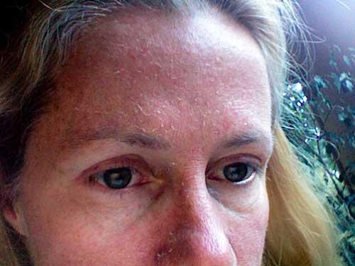 Небезпечні наслідки для шкіри обличчя, якщо не вмиватися кожен день – 8 фактів