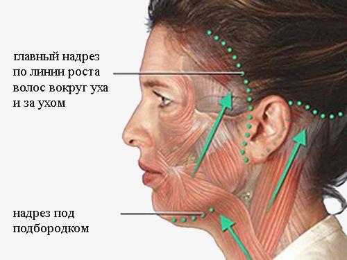 Операція ритидэктомии з фото до і після