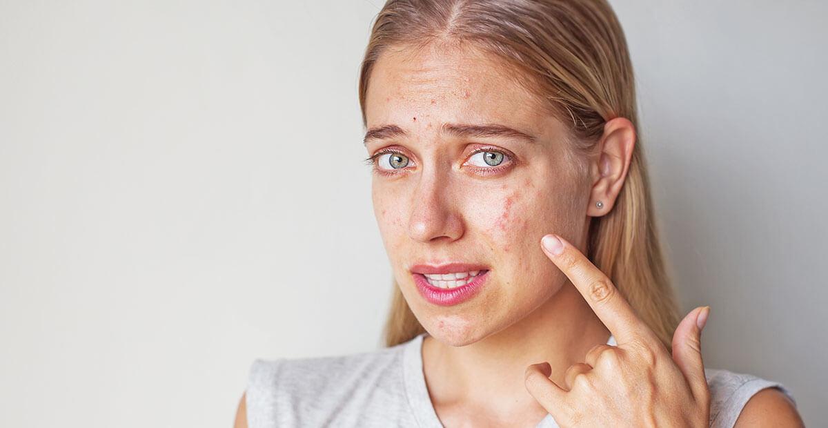 Поширені причини проблем з шкірою. Це потрібно знати всім!