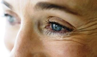 Причини появи проблемної шкіри в літній час – поради, як запобігти і виправити