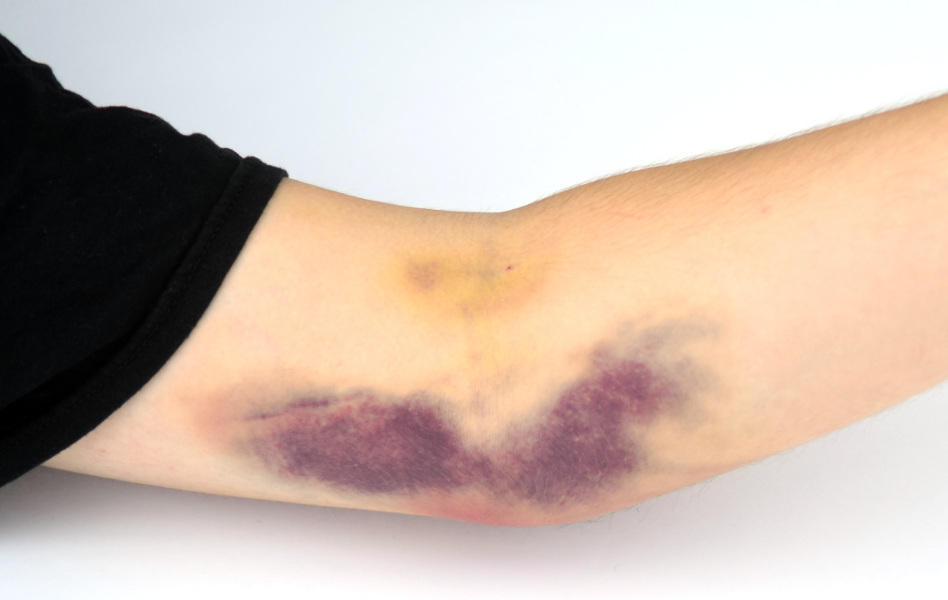 Синці на шкірі від ін'єкцій – як від них позбутися за 1 день