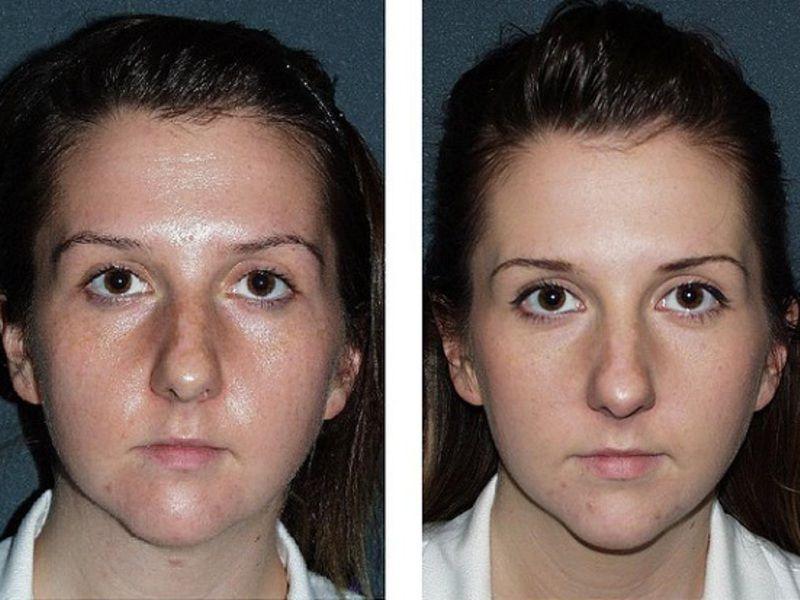 Вплив матуючих засобів на здоров'я і вигляд шкіри обличчя – чого варто очікувати?