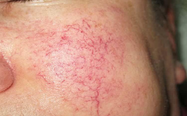 З'явився купероз на обличчі і як з ним боротися? – поради лікарів