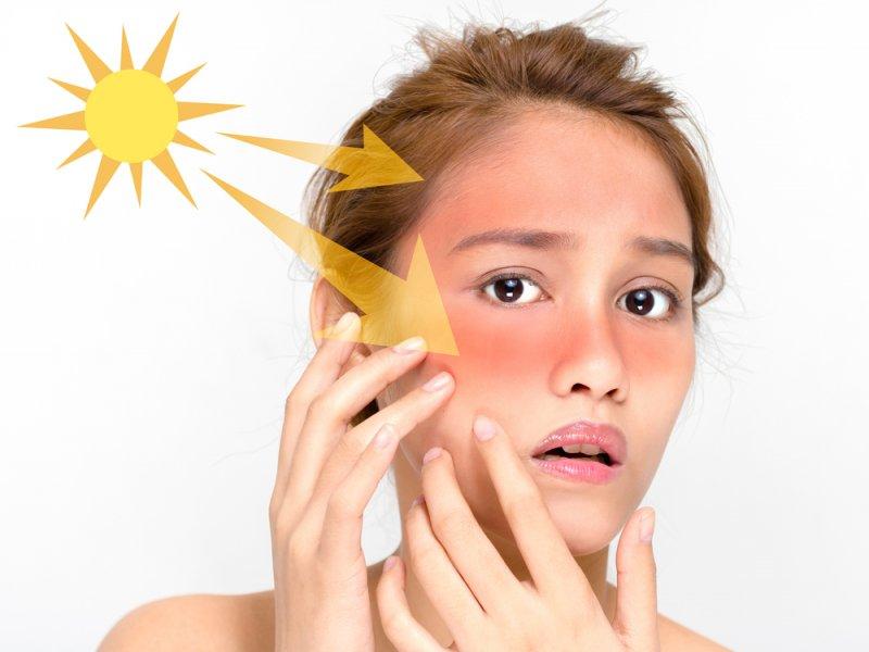 Захист від сонця для жирної шкіри
